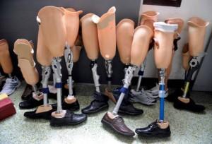 Protézisek