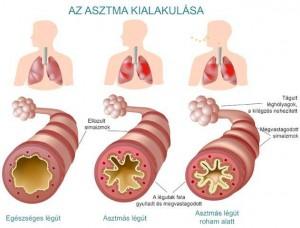Az asztma kialakulása